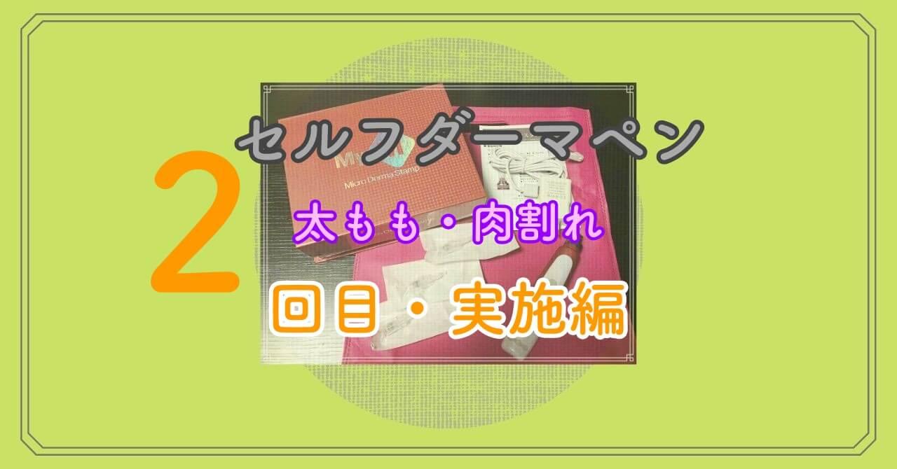 太ももの肉割れにセルフダーマペン【実践編・2回目】